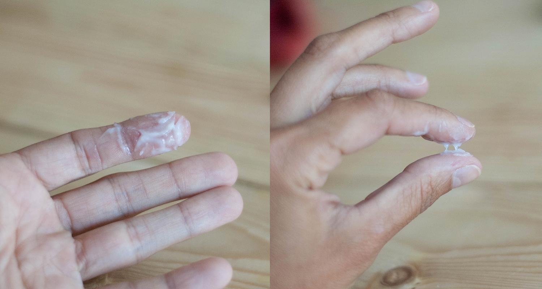 Молочница у женщин первые признаки симптомы и лечение