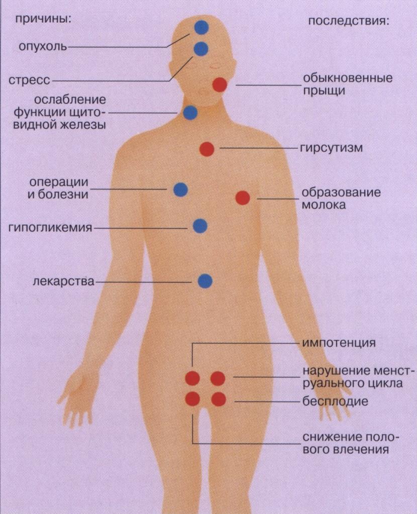 Мономерный пролактин: причины повышения, симптомы, лечение