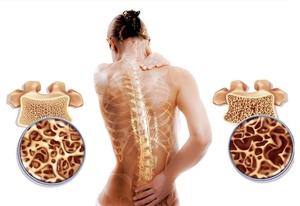 Лечения остеопороза у женщин