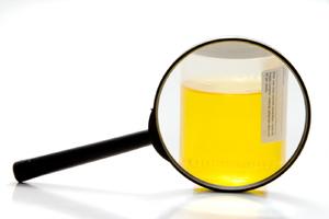 Повышены лейкоциты в моче