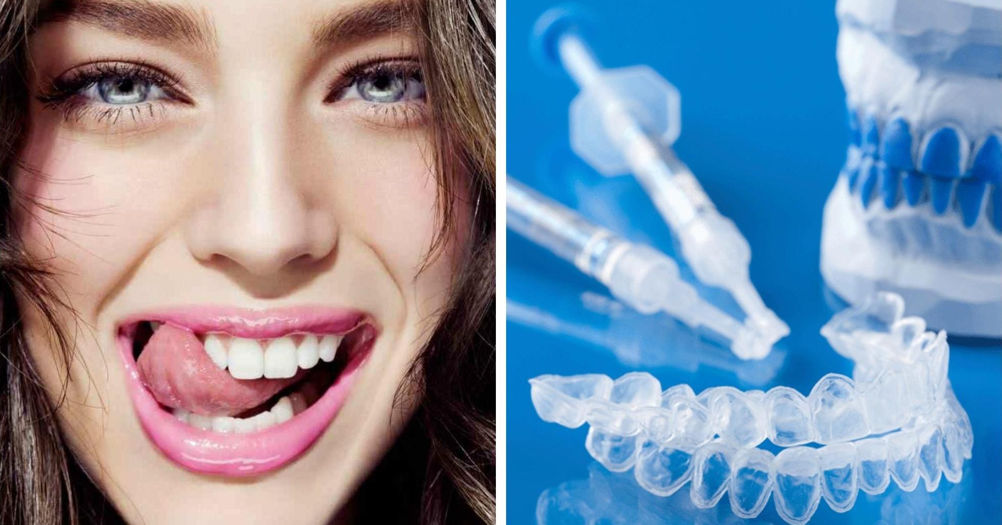 Как отбелить зубах в домашних условиях отзывы 169